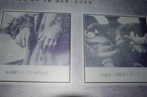Frostbite Experiments.731 Museum.Harbin